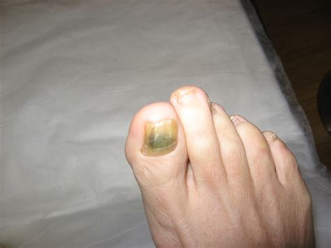 fungal toenail infection photo gallery