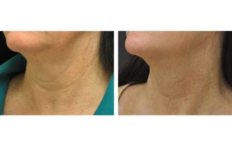 exilis elite non surgical skin tightening san diego