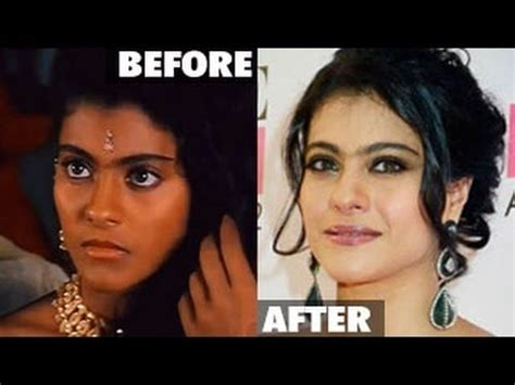 how to become light skin kajol undergoes skin ligthening surgery