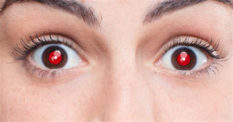 pink eye images what causes in photos and how to fix the eye