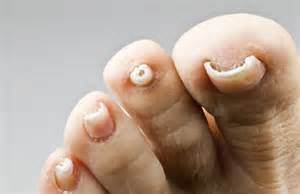 toenail fungus home remedy how to treat nail fungus home remedy for toenail fungus
