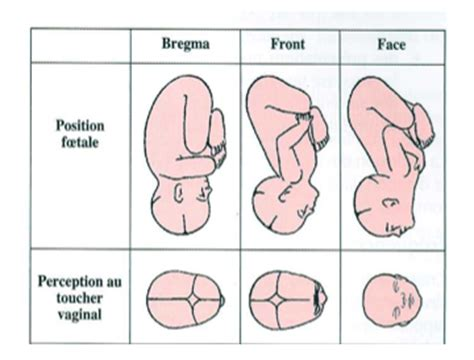accouchement par le si鑒e accouchement physio et pr 233 sentation t 234 te de b 233 b 233 de