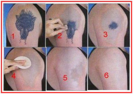 Tattoo Removal Cream That Works | laserless tattoo removal guide review is it scam or legit