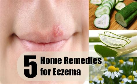 how to cure eczema treatment for eczema html