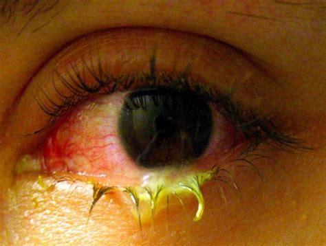 Obat Tetes Untuk Mata Kuning benar gak sih melihat orang sakit mata bisa menular