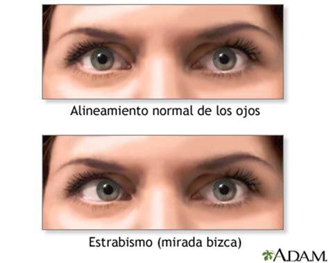 Ojos Bizcos Imagenes | ojos bizcos estrabismo medlineplus enciclopedia m 233 dica