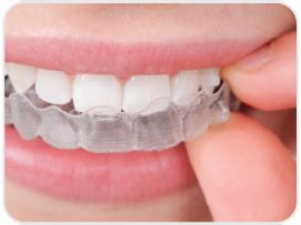 invisalign aligning utah cherry creek dental