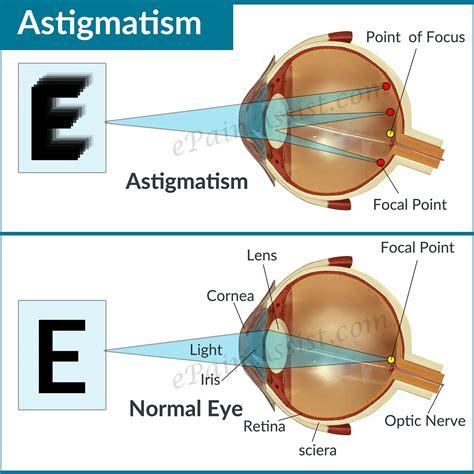 test astigmatismo astigmatism causes types symptoms treatment lenses