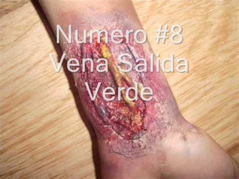 imagenes de heridas asquerosas tipos de heridas fx sangrientas youtube