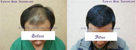 hair transplant china dr wen yi wu one pass surgery fut 3460 grafts on class v