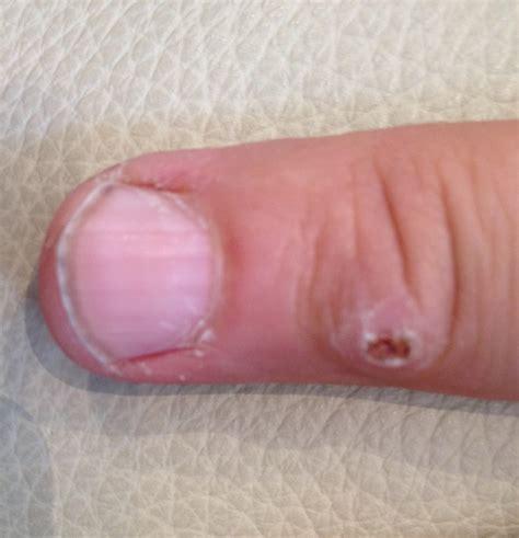 warts treatment warts verrucas lazeaway