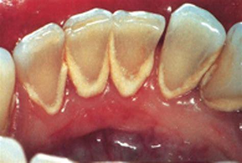Perawatan Membersihkan Karang Gigi info kesehatan menghilangkan membersihkan karang gigi