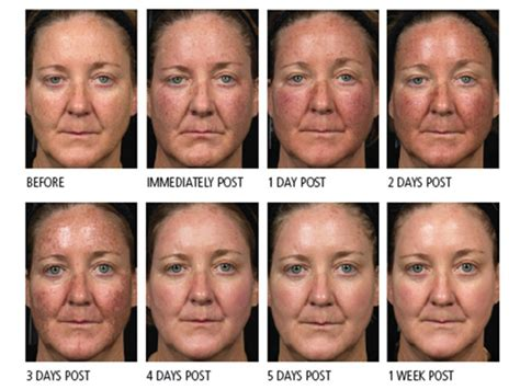3 photodynamic therapy for acne philadelphia robert what is fraxel laser treatment what can it do for you