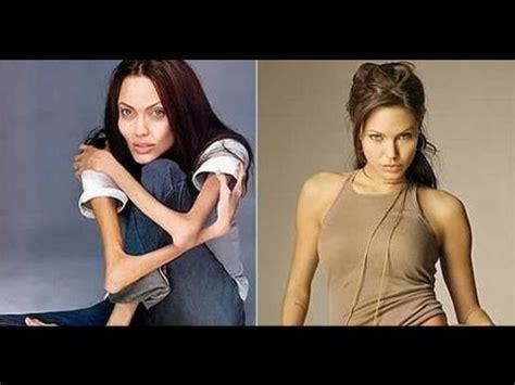 imagenes impactantes de anorexia y bulimia famosas con anorexia impactante video youtube
