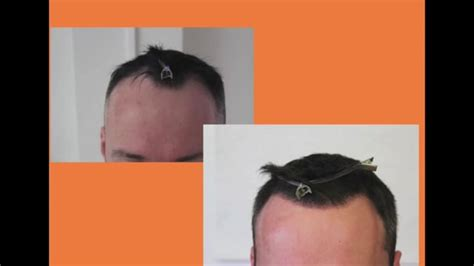 fue hair transplant 1920 grafts whtc www ufue fue hair transplant 1920 grafts unshaved unshaven