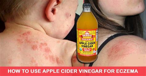 How Do I Use Apple Cider Vinegar To Detox by How To Use Apple Cider Vinegar To Fight Eczema Naturally