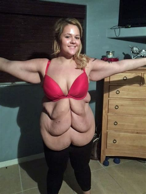 flabby skin 60 year female woman buys first bikini after having 2 stone of skin