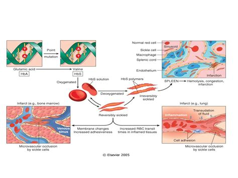sickle cell diagram sgugenetics pathophysiology of sickle cell anemia