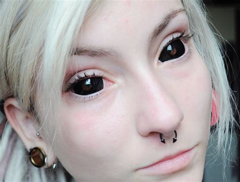 scleral tattoo sclera elaxsir