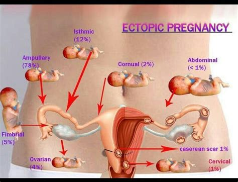 pregnancy symptoms symptoms of ectopic pregnancy new center