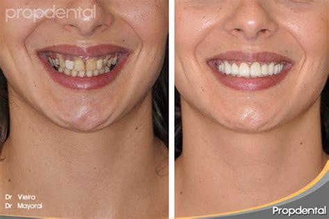 precios de fundas dentales restauraciones est 233 ticas cer 225 micas