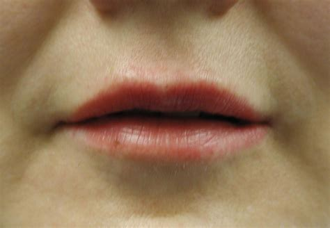Injection Collagen before and after photos of collagen lip injections