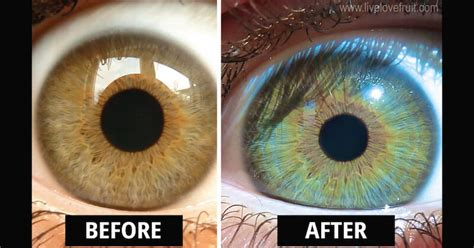 Do Change Color After Detox by This Is How My Changed Colour After Vegan