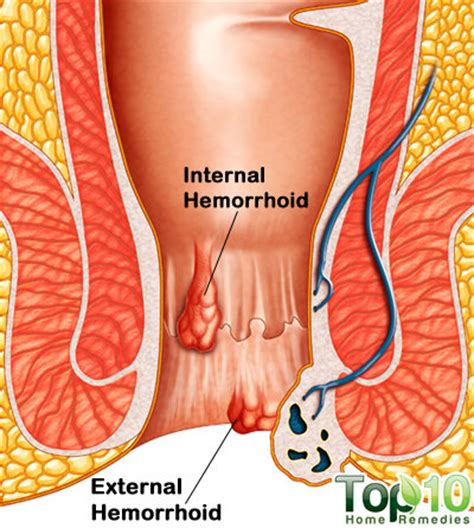 piles pictures and symptoms diagrams home remedies for hemorrhoids piles top 10 home remedies