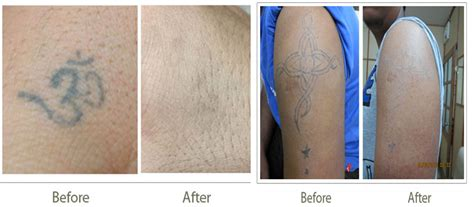 tattoo removal fredericksburg va 100 laser removal safe effective laser
