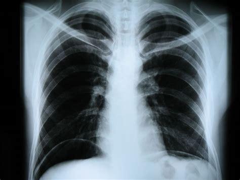 dolore gabbia toracica sinistra рентгенография википедия