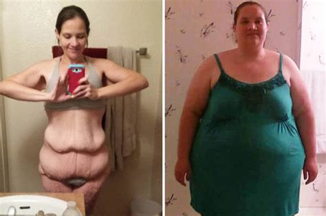 x weight loss obese undergoes weight loss transformation
