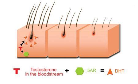 can foods and vitamins stop dht livestrong best natural dht blockers learn about safe hair loss