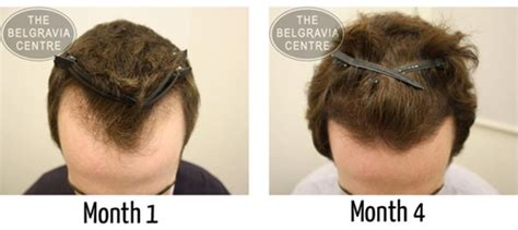20 month old hair thinning on top receding hairline prevent and regrow a receding hairline