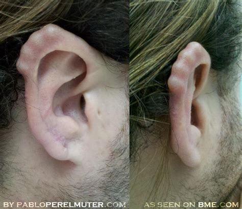 ear pointing bme tattoo piercing and body modification