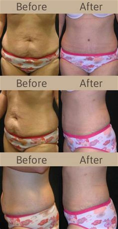 lifting after ac section before and after tummy tuck photos