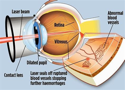 Can Lasik Cause Blindness lasik eye surgery risk factors and limitations health tips andhrafriends