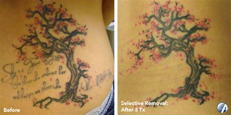 tattoo removal monterey rapid laser removal salinas reduction monterey