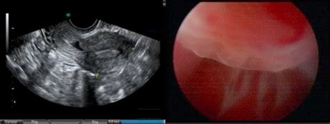 ruptured uterus after c section uterine rupture symptoms and treatment online medical