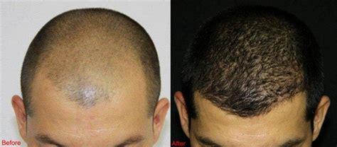 hair transplant jeddah hair transplant in saudi arabia hair transplant saudi
