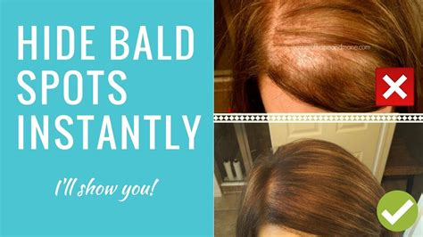 wigs to hide baldpatch hide it scalp concealer for bald spots thinning hair