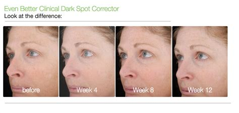 even better clinical spot corrector before and after clinique even better clinical spot corrector 30ml