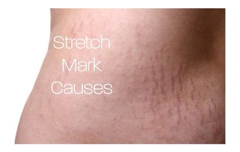 Detox For Stretch Marks by What Causes Stretch Marks On The Skin Cleanse