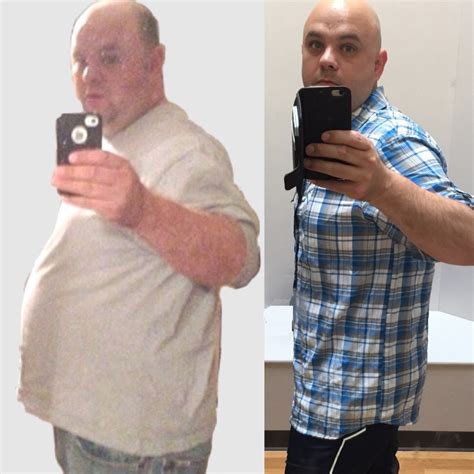 u weight loss clinic reviews truvision diet pills side effects all articles about