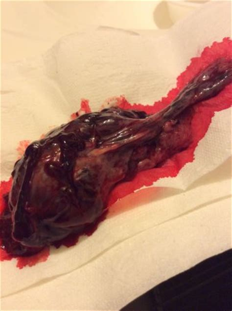 warning graphic pic is it the placenta i missed
