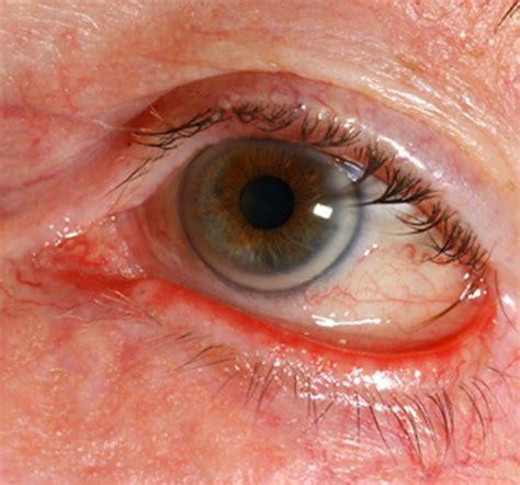 eye problems pictures ectropion eye diseases epharmapedia
