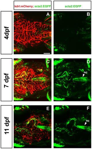 smooth muscle actin actaasma zebrafish transgenic