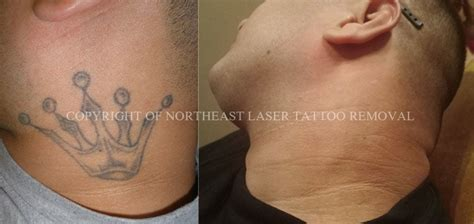 tattoo removal in minnesota this was completely removed without any difficulty