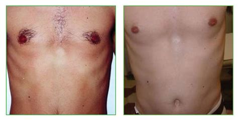laser tattoo removal newcastle laser hair removal clearskin newcastle