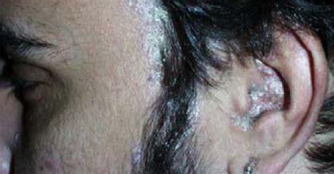 psoriasis cuero cabelludo psoriasis cuero cabelludo las causas y s 237 ntomas de la