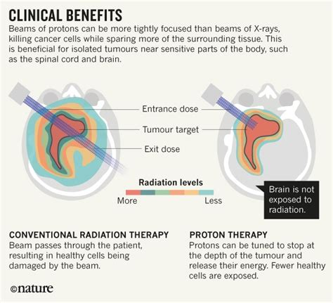 Proton Beam Therapy Cost by Three Ways To Make Proton Therapy Affordable Nature News